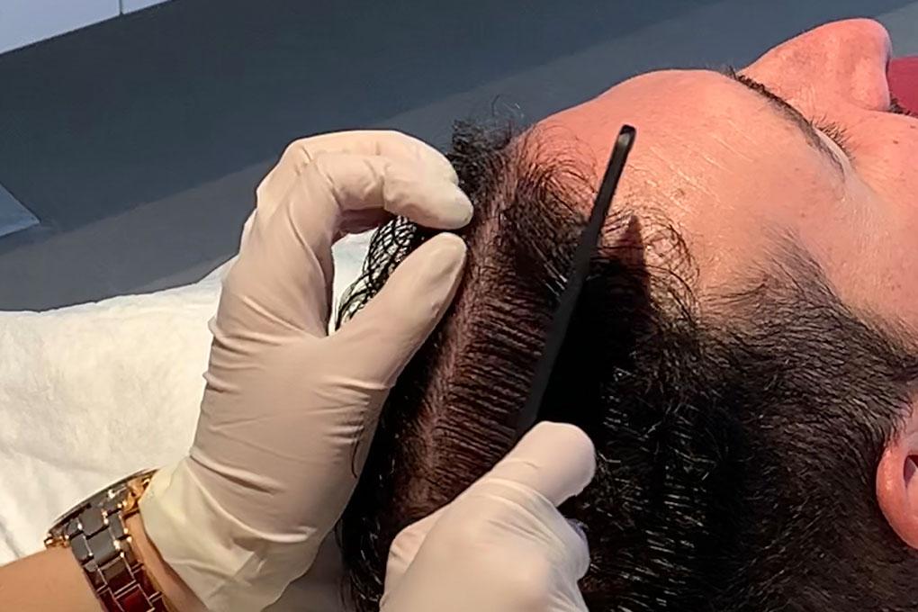 Clínica de mesoterapia capilar